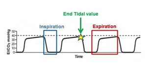 capnography waveform