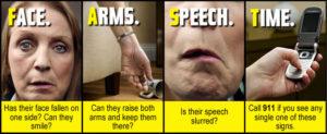 FAST stroke intervention